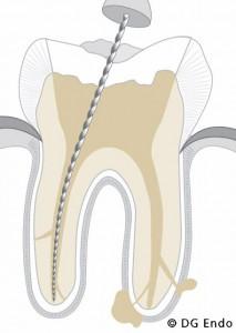 Endodontie - Copyright DG Endo